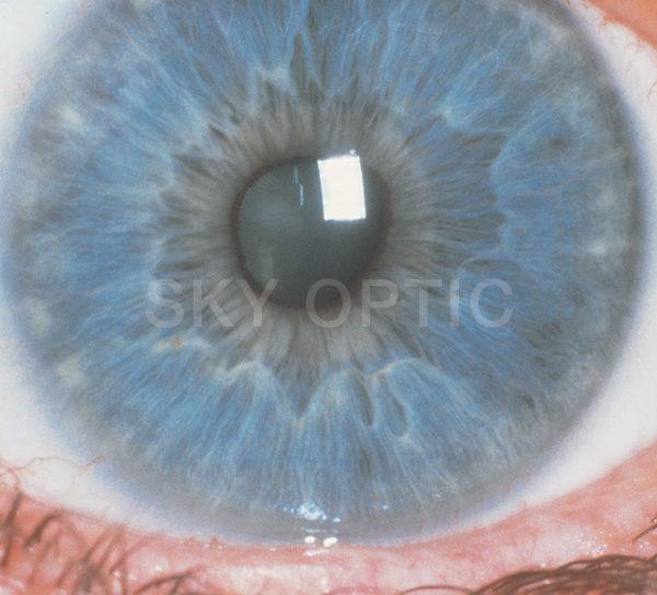 Rodenstock-Eyepix